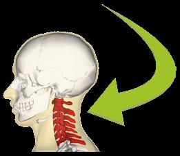 Neck Pain Areas (Cervical Vertebrae)
